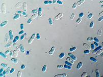 foto lieviti microscopio